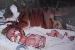 Duncan MacLaren, now 9, was littler than his stuffed tiger. He and his sister both suffered from IUGR meaning that they stopped growing in utero. (Click on image to enlarge.)